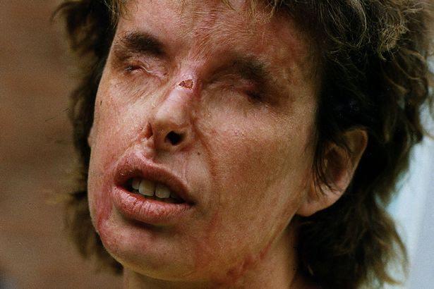 Louise Duddy who was attacked by Gordon Modiak