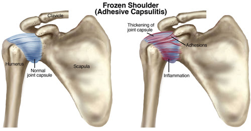 Image result for frozen shoulder syndrome