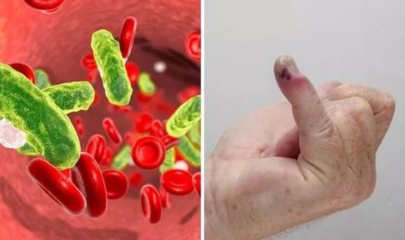 पूरे साउथ एशिया में भारत sepsis से होने वाली मौतों के मामले में दूसरे नंबर पर आता है जानें क्या है sepsis ? कारण, लक्षण और इलाज