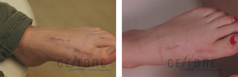 Keloid Scars After Laser Tattoo Removal
