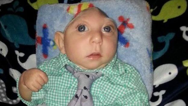 Bebé lleva un año viviendo con la mitad de su cerebro