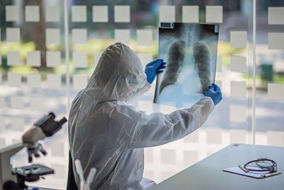 a doctor in PPE holding up a lung xray