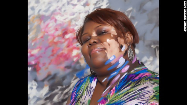 "<a href='http://www.stephaniecorne.com/' target='_blank'>Artist Stephanie Corne </a>took portraits of people with the skin condition vitiligo while attending the 2013 World Vitiligo Day conference in Detroit. "" I'm drawn to people suffering from social exclusion, and art can be a healing tool,"" Corne said. Pictured, Kimberly Boyld."