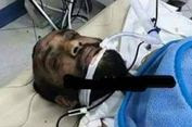 Dioperasi, Pelaku Penembakan di Gereja Kristen Koptik Mesir Selamat