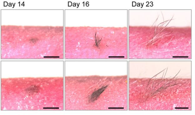 skin samples sprouting hair