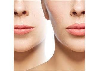 Lip Lift Burun Ile Dudak Arası Mesafeye Estetik Dokunuş Güzellik