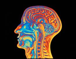 Brain scan. Coloured Magnetic Resonance Imaging (MRI) scan through a human head, showing a healthy brain in side view. The face is seen in profile at left. Tissues of the mouth, nasal cavity, and central nervous system are visible