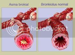 Bronkiale, Penyakit Asma