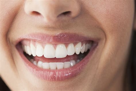 Best All Natural and High Tech Ways to Whiten Your Teeth