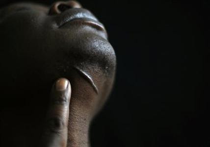Hassan Mekki, a 32-year-old Sudanese migrant, shows a scar under his chin in Athens December 5, 2012. REUTERS-Yannis Behrakis