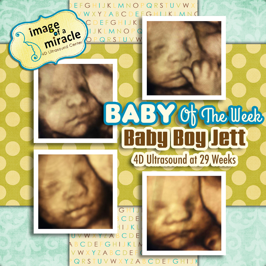 Baby Boy Jett Image Of A Miracle 4d Ultrasound Center