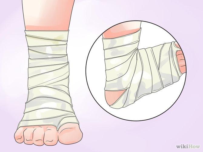 Heal Cracked Skin Step 6 Version 2.jpg