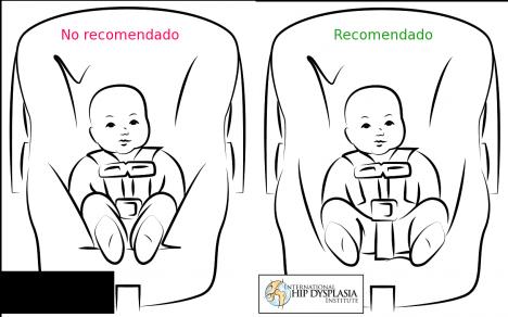 NO RECOMENDADO. Asientos de coche que impiden la separación de las piernas del bebé.  RECOMENDADO. Asientos más amplios ofrecen espacio para separar las piernas, colocando las caderas en una mejor posición.