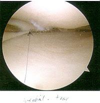 Dymphna's knee