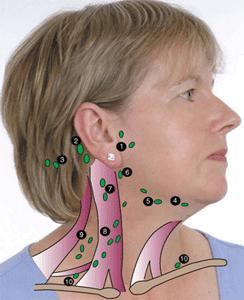 تورم الغدد الليمفاوية الاسباب و العلاج Swollen Lymph Glands
