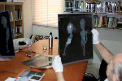 http://www.openminds.tv/wp-content/uploads/Atacama-Alien-Xray.jpg