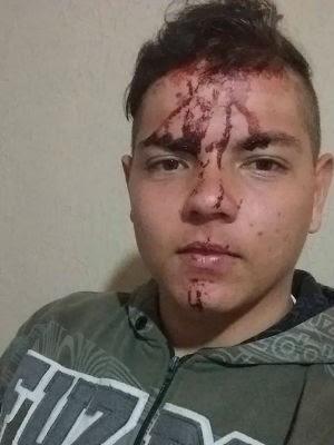 Rafael Spasini precisou levar pontos na cabeça após ser atingido por garrafa (Foto: Arquivo Pessoal/Rafael Spasini)