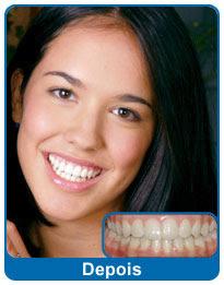 antes-e-depois-aparelho-dentario-4