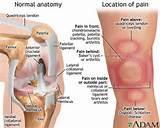Acute Pain Behind Knee Photos