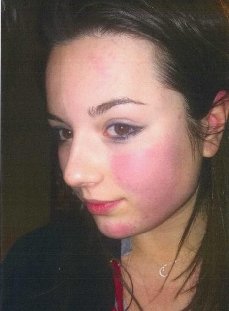Abduls Blog Selfie Shows Battered Face Of Teen Girl Who Killed Herself Days After She Was -7116