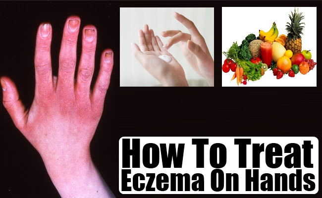 How To Treat Eczema On Hands - Causes And Symptoms Of Hand ...
