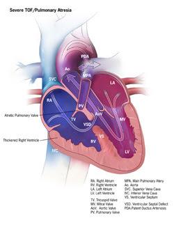 Severe TOF / Pulmonary Atresia