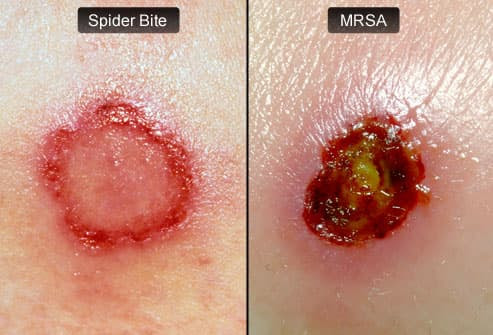 Spider Bite vs MRSA