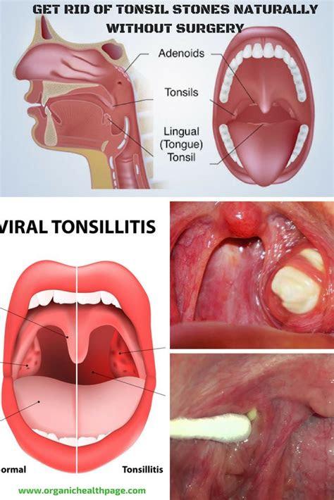 pin  hannah chard  natural pinterest tonsil stones