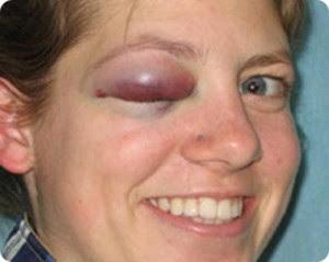beaten wife