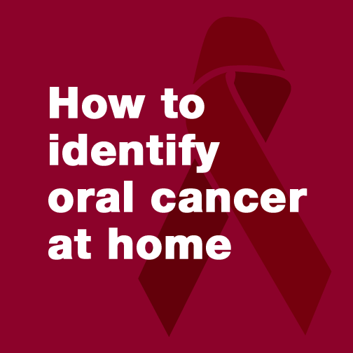 How to identify oral cancer at home