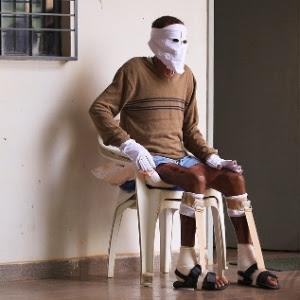 05.abr.2014 - Márcio Rony da Cruz Nunes, de 37 anos, ficou com 75% do corpo queimado depois de resgatar três pessoas de uma família em um ônibus incendiado em São Luís, no Maranhão