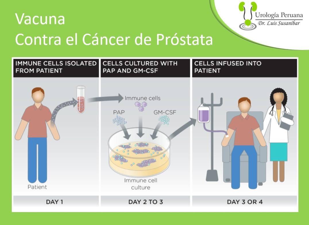 ¿Cuál es el tratamiento ADT para el cáncer de próstata?
