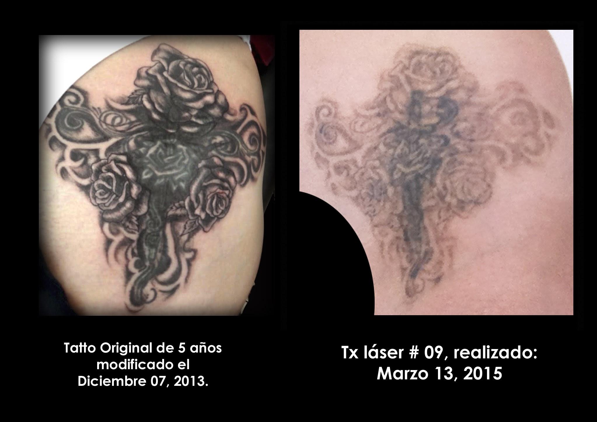 Experiencias De Gente Que Se Ha Eliminado Tatuajes Con Láser