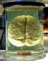 5 Fakta UnikTentang Otak Manusia