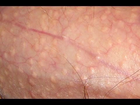 pearly white papules, home remedies for ppp, pearly penile