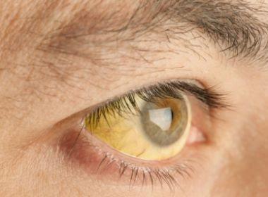 Febre Amarela pode ser transmitida sexualmente e detectada por exame de urina