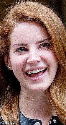 Copycat: Lana foi no mês passado visto que ostenta um dente de ouro, que a cantora Ke $ ha é conhecida por