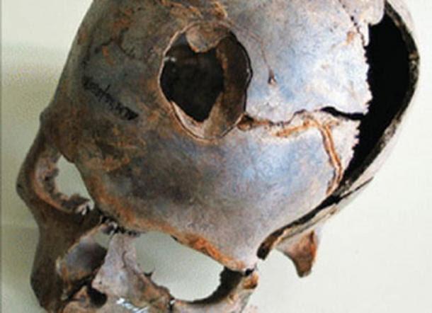 Uno dei reperti provenienti dal sito include questo teschio umano con un grande frattura.