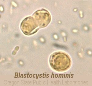 Parasite Blastocystis Hominis Natural Treatment