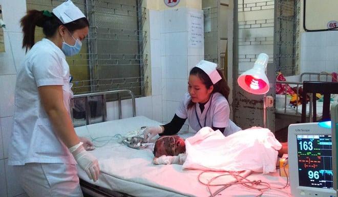Hình ảnh Thương tâm bé trai 13 tháng tuổi bị bỏng 70% do ngã vào chai xăng số 1