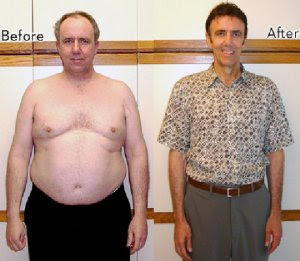 [Image] Before/After