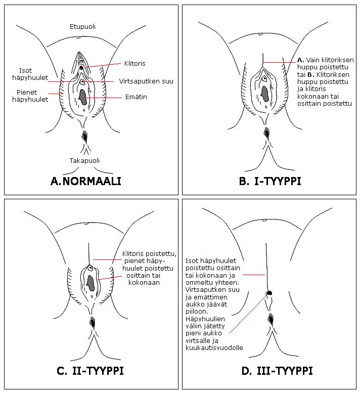 naisten ympärileikkaus Rauma