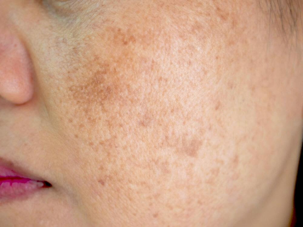 Everything You Need to Know About Skin Pigmentation - Amore Mi