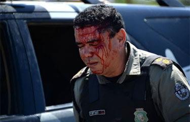 Policial ferido no protesto em Fortaleza. Foto: Vanderlei Almeida/AFP Photo