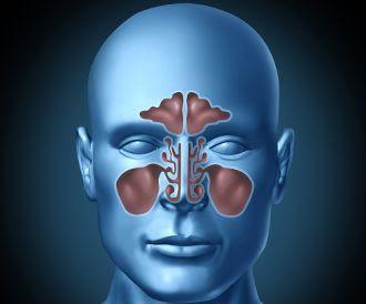 لأول مرة: علاج التهاب الجيوب الأنفية بالقسطرة !