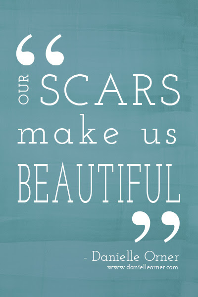 Quotes About Scars 372 Quotes