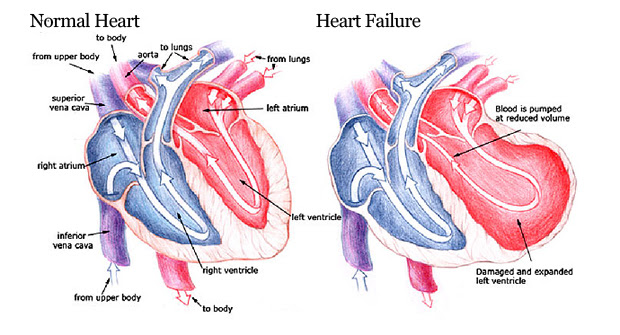 Image result for heart failure