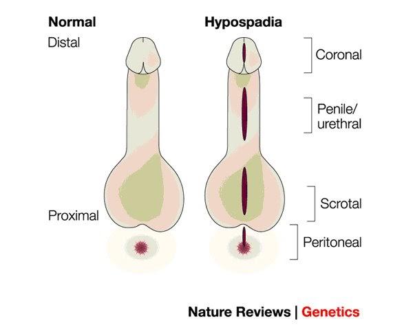hipospadias penis