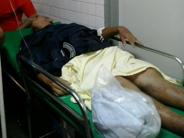 Guarda Municipal foi baleado na perna (Foto: Daniel Queiroz/Arquivo pessoal)