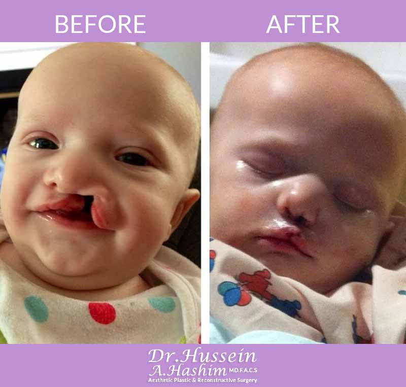 Palate Cleft Lip Surgery In Lebanon  E2 80 A2 Dr Hussein Hashim